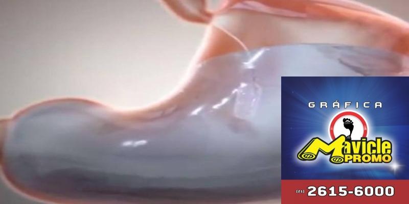 Pílula que tinha visto balão gástrico promete mesmos efeitos da cirurgia bariátrica