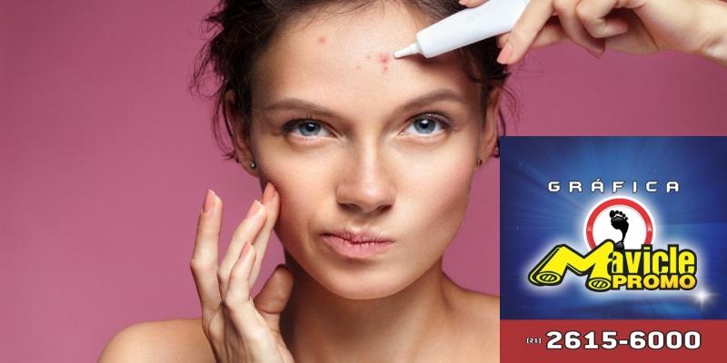 Acne: conheça os tratamentos para os casos específicos ou graves   Imã de geladeira e Gráfica Mavicle Promo